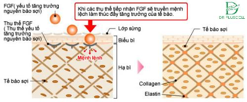 yếu tố tăng trưởng FGF trị sẹo rổ