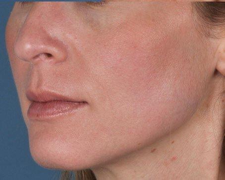 Chuyển biến tích cực của bệnh nhân da nám sau khi dùng kem Tretin0in